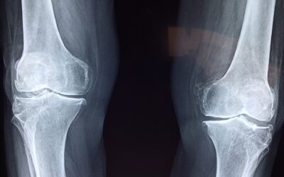 Method & System for Knee Joint Repair